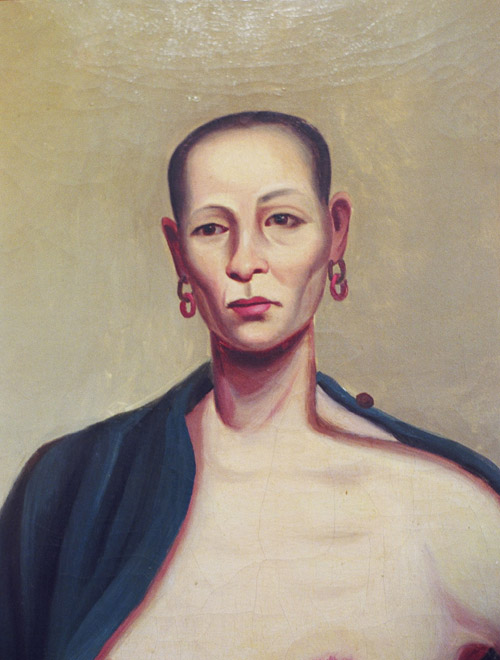 Close up of Lam Qua's 'Kwan Meiurh' or Woman with diseased breast, oil on canvas, 24 x 18 inches, ca. 1838. The Gordon Museum