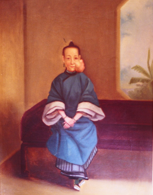 "Lo Wanshun (Woman with tumor on left cheek), Lam Qua, oil on canvas, 18 x 24 inches, Sarcomatous tumor, 1836 ""The wound healed by the first intention, and in ten days the dressing was wholly removed. The face had nearly its natural appearance. Grateful and happy, she returned to her husband and family."""